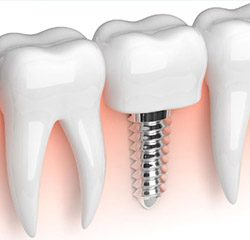 Trends to Watch: Dental Implant Technology